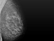 Mammographie 1030 Wien